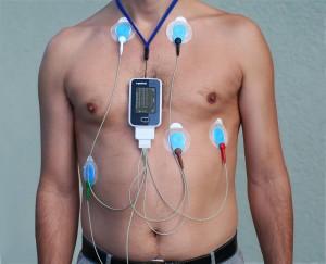 24 h EKG - Langzeit-EKG. (c): Verkabelung beim Langzeit-EKG CC BY-SA 3.0 https://de.wikipedia.org/wiki/Langzeit-EKG#/media/File:Alex_CM4000.jpg