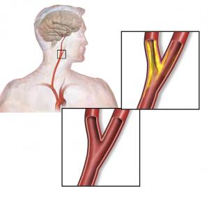 Carotisstenose - Verengung der Halsschlagader