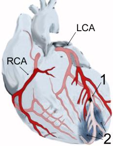 Myokardinfarkt der Vorderwandspitze (2) nach Verschluss (1) des vorderen absteigenden Astes (LAD) der linken Kranzarterie (LCA), schematische Darstellung, Quelle